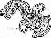 Пластины для выравнивания зубов у детей без брекетов