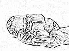 Как давать хофитол новорожденным при желтухе?