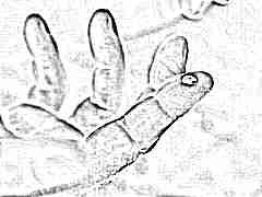 У ребенка повышены эритроциты в крови