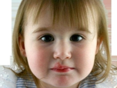Герпес 6 типа у детей