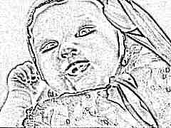 Симптомы, лечение и профилактика аллергии у детей