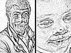 Доктор Комаровский о том, как лечить ячмень на глазу у ребенка