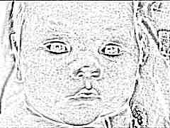 Что делать, если появилась сыпь у новорожденного или грудничка?