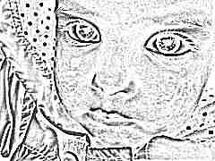 Что делать, если появилась сыпь на лице у ребенка?