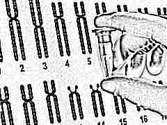 Что такое неинвазивный пренатальный ДНК-тест и почему его делают при беременности?