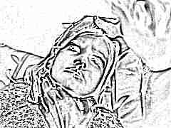 Миозит шеи у ребенка: симптомы и лечение