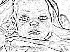 Симптомы и лечение потницы у детей