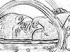Что такое гипоксия и какие последствия могут быть у новорожденных? Симптомы и лечение