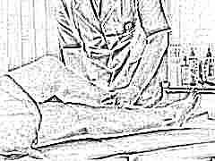 Почему отекают ноги после кесарева сечения и что делать?