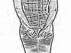 Геморрой после родов: от симптомов до лечения