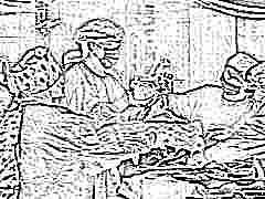 На какой неделе лучше делать кесарево сечение и почему иногда операцию проводят до 37 недели беременности?