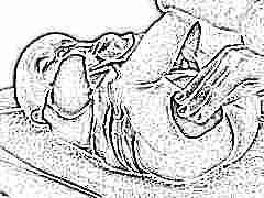 Опрелости у новорожденных: от внешнего вида до лечения
