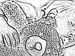 Что такое апноэ у детей и какие особенности есть у ночной формы?