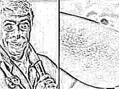 Сыпь у детей доктор комаровский видео thumbnail