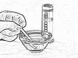 Определение глюкозы в моче тест-полосками
