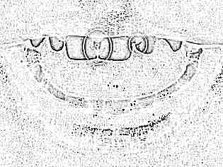 Кариес молочных зубов. Лечение кариеса