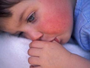 Скарлатина у детей симптомы фото сыпи 56
