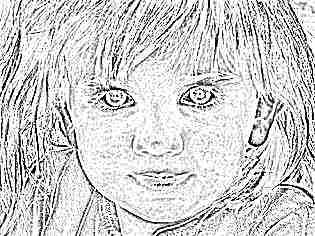 Скарлатина у детей симптомы фото сыпи 10
