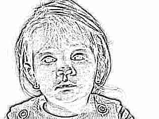 Конъюнктивит у ребенка народными средствами