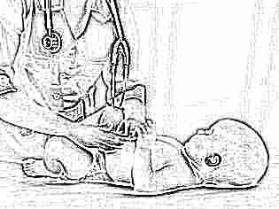 Как лечат дисплазию тазобедренных суставов у детей после года