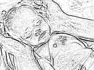 Слезится глаз у малыша массаж thumbnail