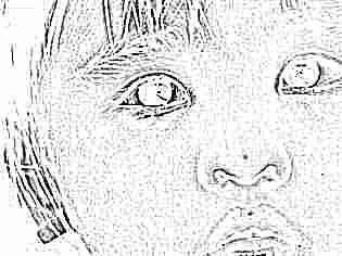Несколько ячменей на глазу у ребенка