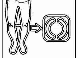 Электрофорез при дисплазии тазобедренных суставов у детей