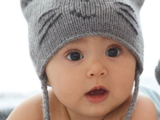 Ребенку 1 год лысый