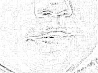 Герпес на губе у ребенка комаровский видео thumbnail
