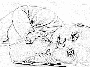 Что означает сухая кожа у ребенка
