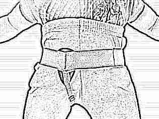 Почему у ребенка грыжа паховая
