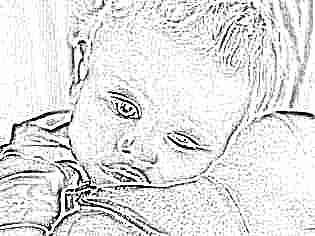 Высокая температура бледная кожа у ребенка thumbnail