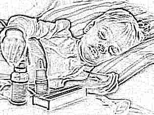 Как бороться с судорогами при температуре у ребенка