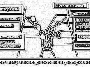 После операции крипторхизм у детей