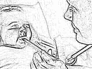 У новорожденного ларингит лечение