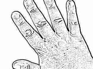Пятна на коже ребенка до года