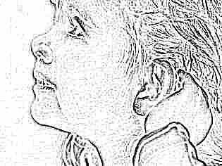 Как долго заживают проколотые уши