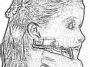 Может ли быть температура после прокола ушей у ребенка thumbnail