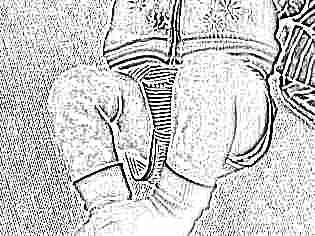 Синяки у ребенка 1 год