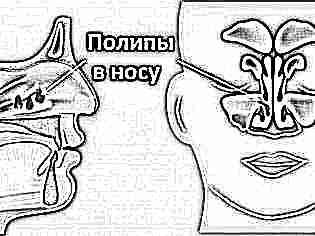 Как снять отек носа у новорожденного