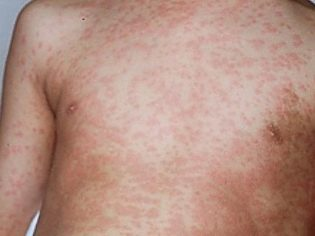 Сыпь на животе у грудничка фото с пояснениями