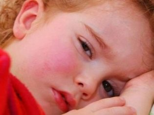 Фото сыпь на небе и языке у детей