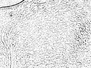 После высокой температуры у ребенка сыпь на лице и теле