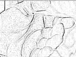 Гнойная сыпь на руках у ребенка