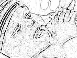У новорожденного сухая кожа облазит thumbnail