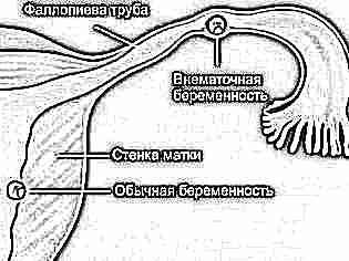 2 недели беременности кровяные выделения