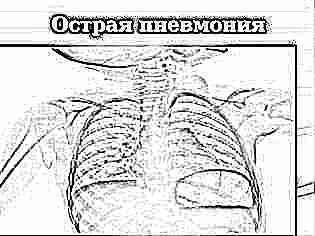 Пневмония без температуры у ребенка 1 год