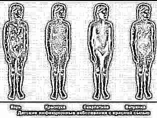 Детские болезни сыпь на ягодицах