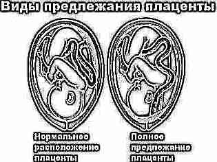 Сужение матки при беременности 5