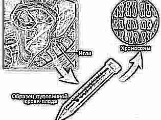 Анализ крови на ХГЧ: что показывает, как сдавать, расшифровка результата, нормы | ХГЧ при беременности: что это такое, таблица норм по неделям, ХГЧ-анализ на кровь – расшифровка уровней, оценка результата на гормон и динамика, тест на ранних сроках, что показывает повышенный уровень